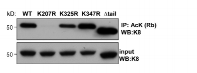 Fig.2 BHK-21 cells were transfected with constructs expressing the designated K8 variant together with WT K18, followed by lysis and immunoprecipitation of acetylated proteins using a rabbit anti-AcK antibody and K8 immunoblot.