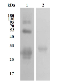 Fig.2 Western Blot analysis.