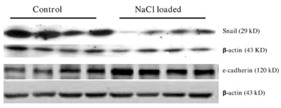 Fig.2 Western blotting analysis of Snail and e-cadherin expression in the total protein extracts from rat placentas.