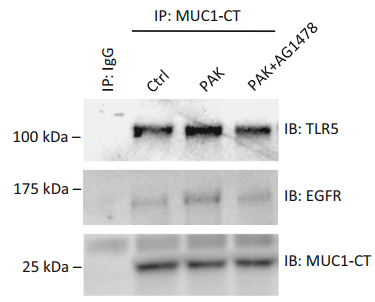 Fig.1 NHBE cells were stimulated for 1 h with medium alone (Ctrl) or 1.0 9 107 CFU/ml of heat-inactivated PAK in the presence or absence of 100 nM of AG1478.