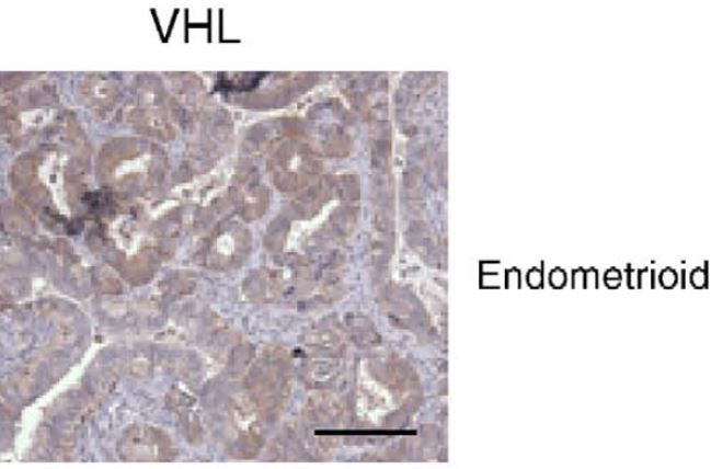 Fig.2 Immunolocalization of VHL protein in endometrioid.
