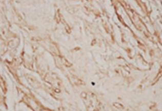 Fig.1 Immunohistochemistry examination with anti-von Willebrand factor antibody (vWF).
