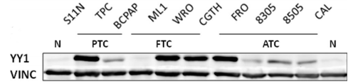 Fig.1 YY1 expression in different human thyroid cell lines: normal (S11N and S63N), papillary carcinoma (TPC-1 and BCPAP), follicular carcinoma (ML1, WRO, and CGTH), and anaplastic carcinoma cell lines (FRO, 8305, 8505, and CAL).