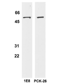 Fig.1 BT20 whole cell lysate(100 mg) was subjected to Western blot analysis using the well characterized CK 8-specific antibody.