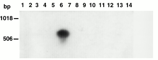 Fig.3 Ethidium bromide–stained gel of PCR products using the MGC24-Gp-F4/B4 primer pairs. This gel was Southern blotted and probed with CD164 cDNA probe C.